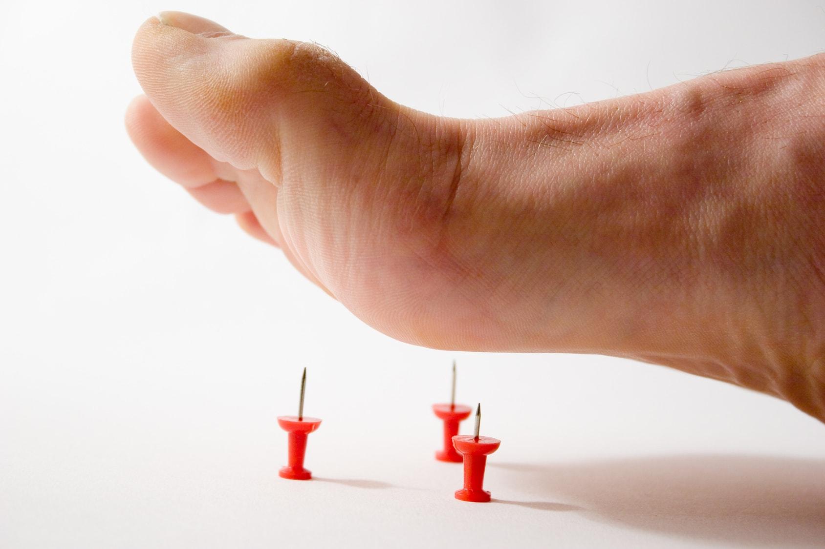 """Диабетическая полинейропатия - симптомы, лечение, диагностика в клинике """"ЭндокринМедикал"""""""